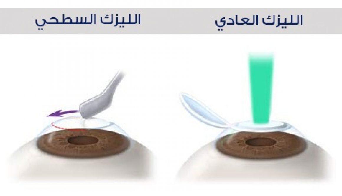 lasik-vs-prk ] د محمد ابو سمك
